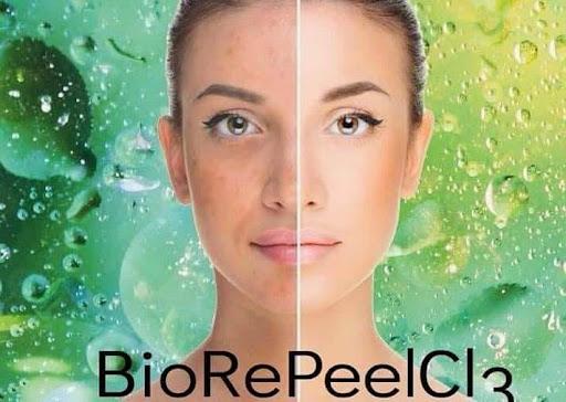 BioRePeelCl3 пилинг за обновяване на кожата, Vintage Dolls